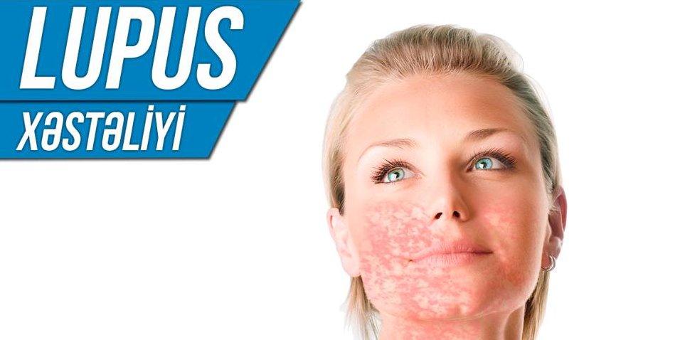 Lupus xəstəliyi