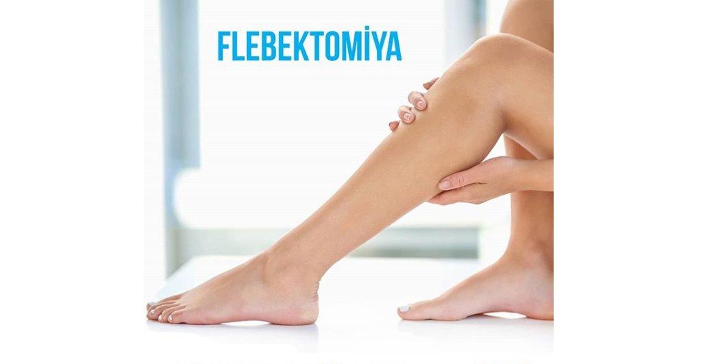 Flebektomiya