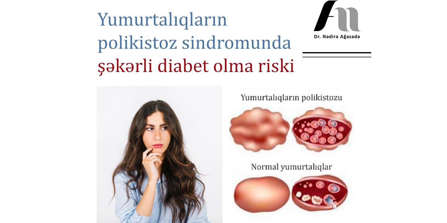 Endokrin xəstəliklər