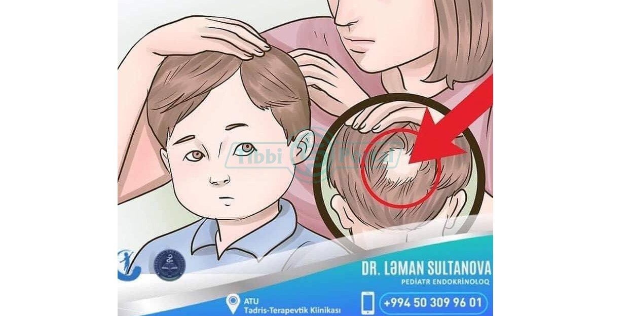 Uşaqlarda ocaqlı saç tökülmənin endokrin səbəbləri, ushaqlarda ocaqli sac tokulmenin endokrin sebebleri