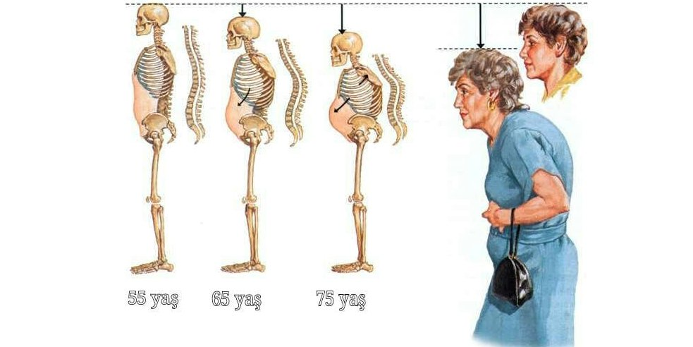 Osteporoz nəticəsi
