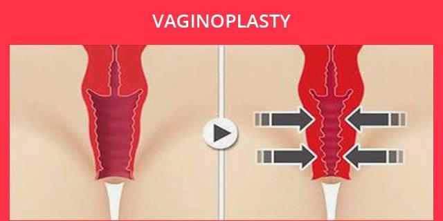 Vaginoplastika- intim plastika