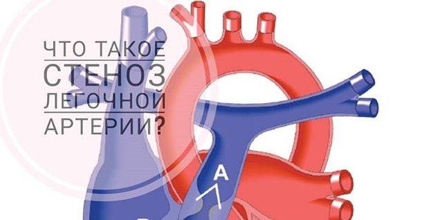 Что такое Стеноз легочной артерии