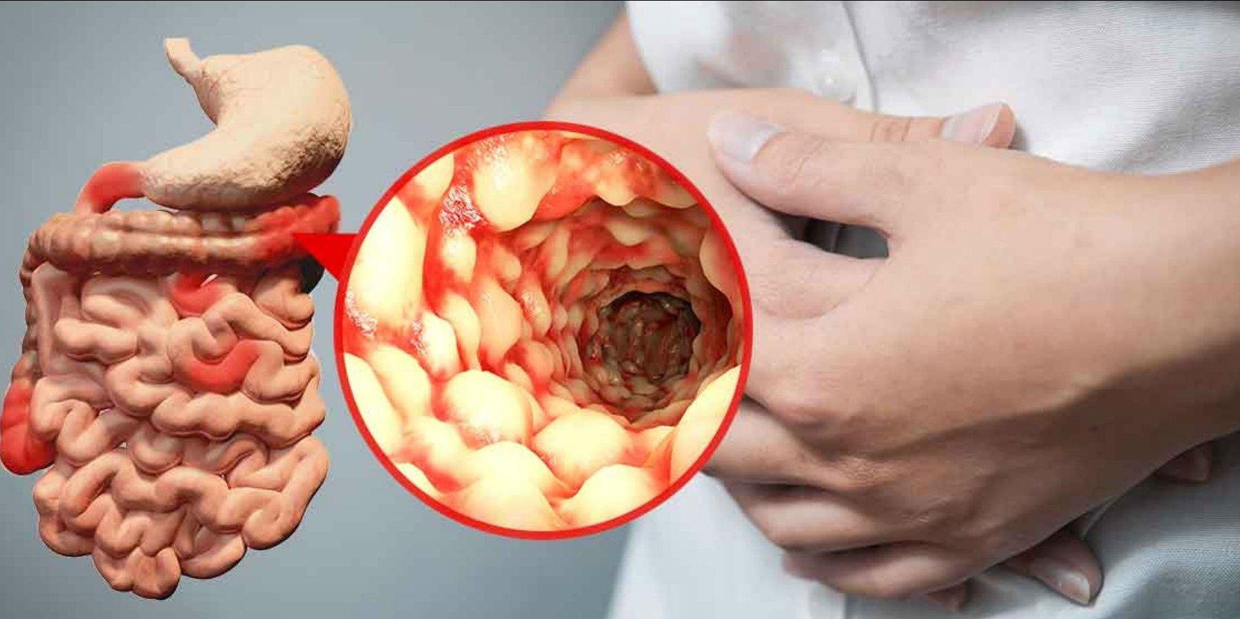 Crohn xəstəliyinin və ulserativ (xoralı) kolitin bioloji müalicəsi.