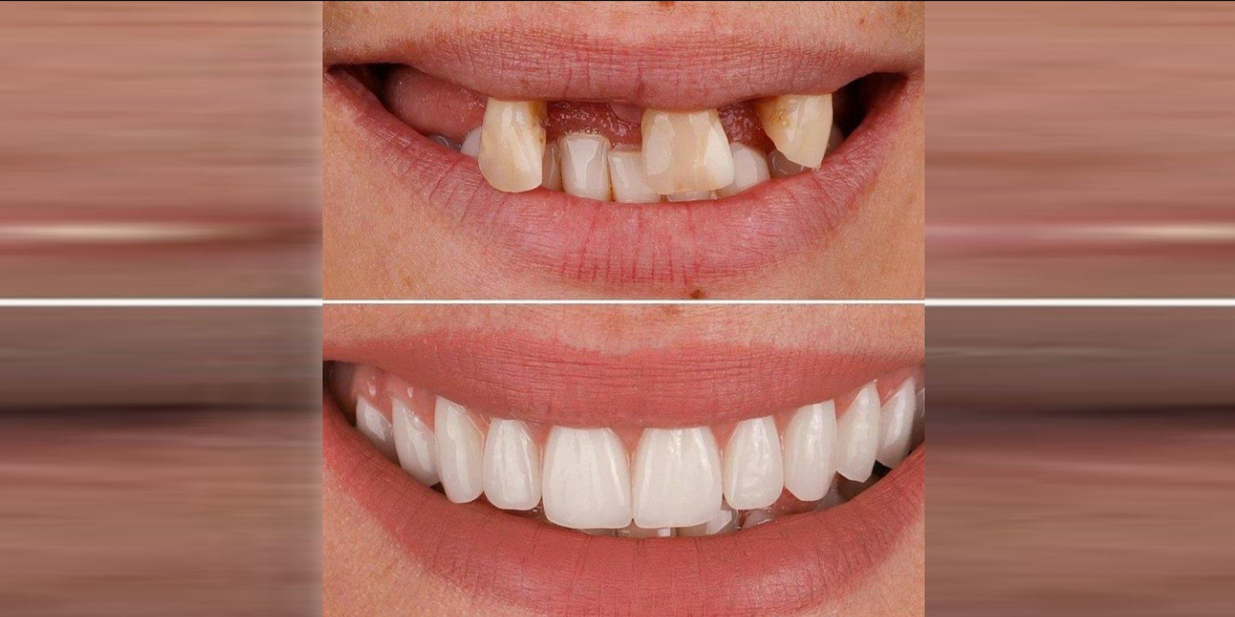 Прямая рестоврация зубов