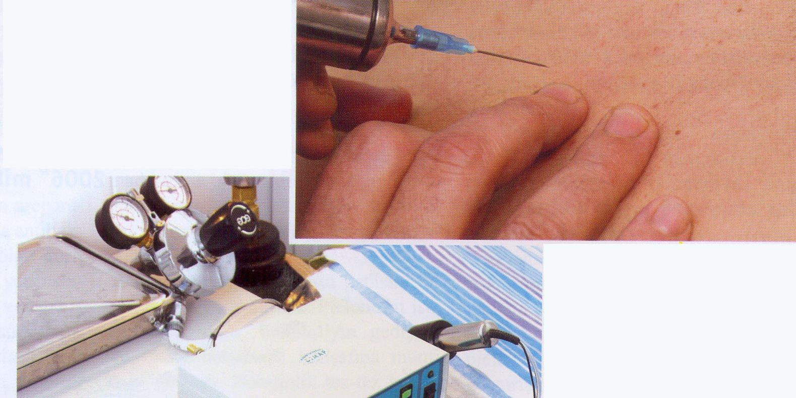 Pnevapunktura